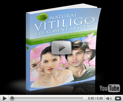 Natural Vitiligo Treatment System Review By Michael Dawson